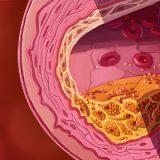 โรคหลอดเลือดแดงแข็ง
